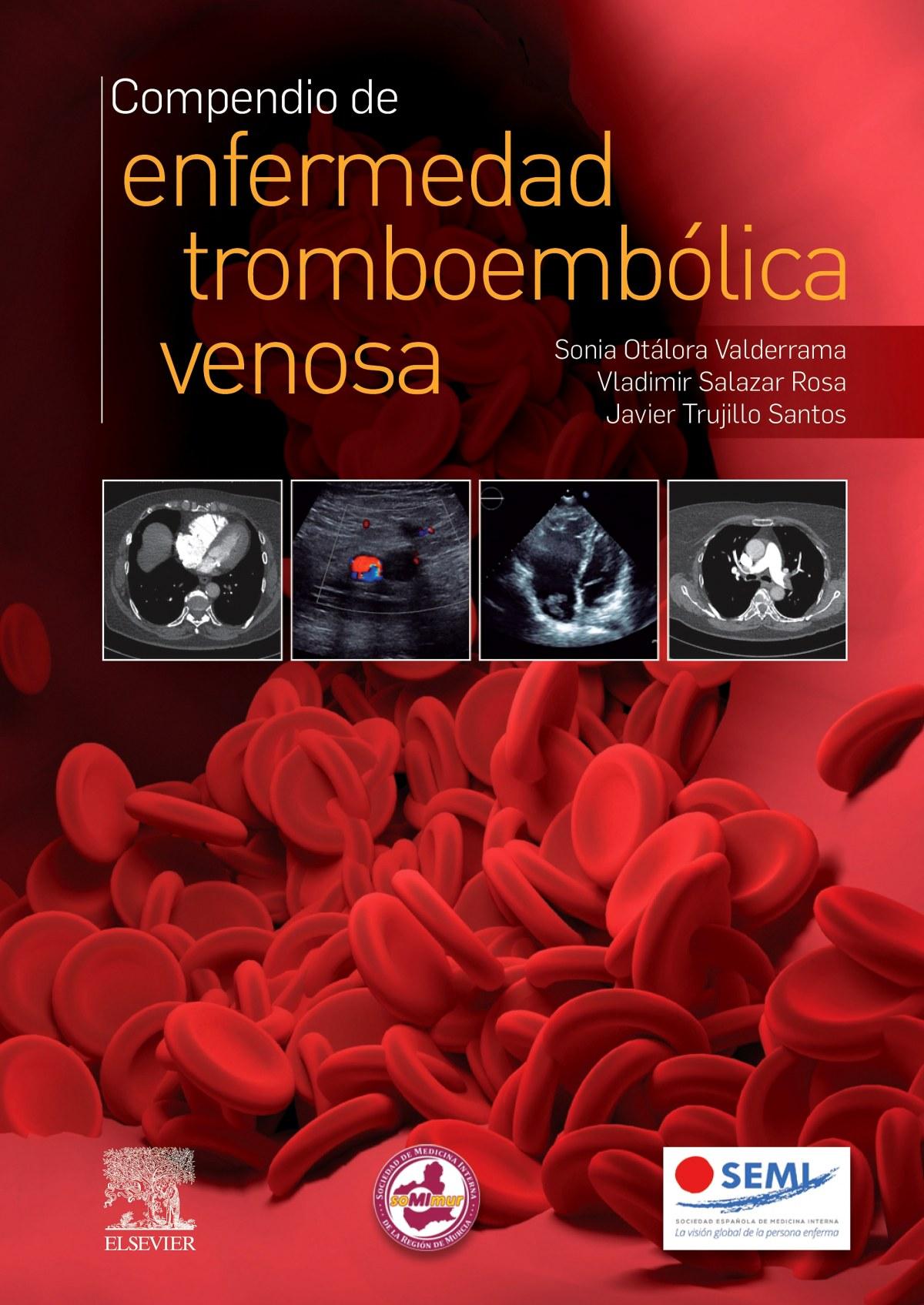 Compendio de enfermedad tromboembólica venosa 9788491137276